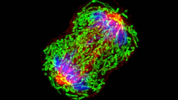 A breast cancer cell dividing, Credit: National Cancer Institute / Univ. of Pittsburgh Cancer Institute