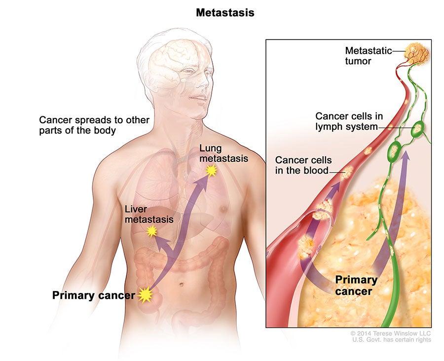 image of Metastasis in the human body