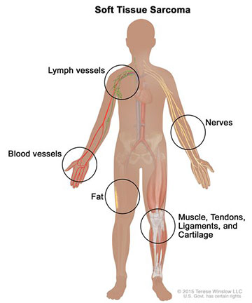 A diagram showing where soft tissue can be found in the body. Cancer cell progression. Credit: Terese Winslow